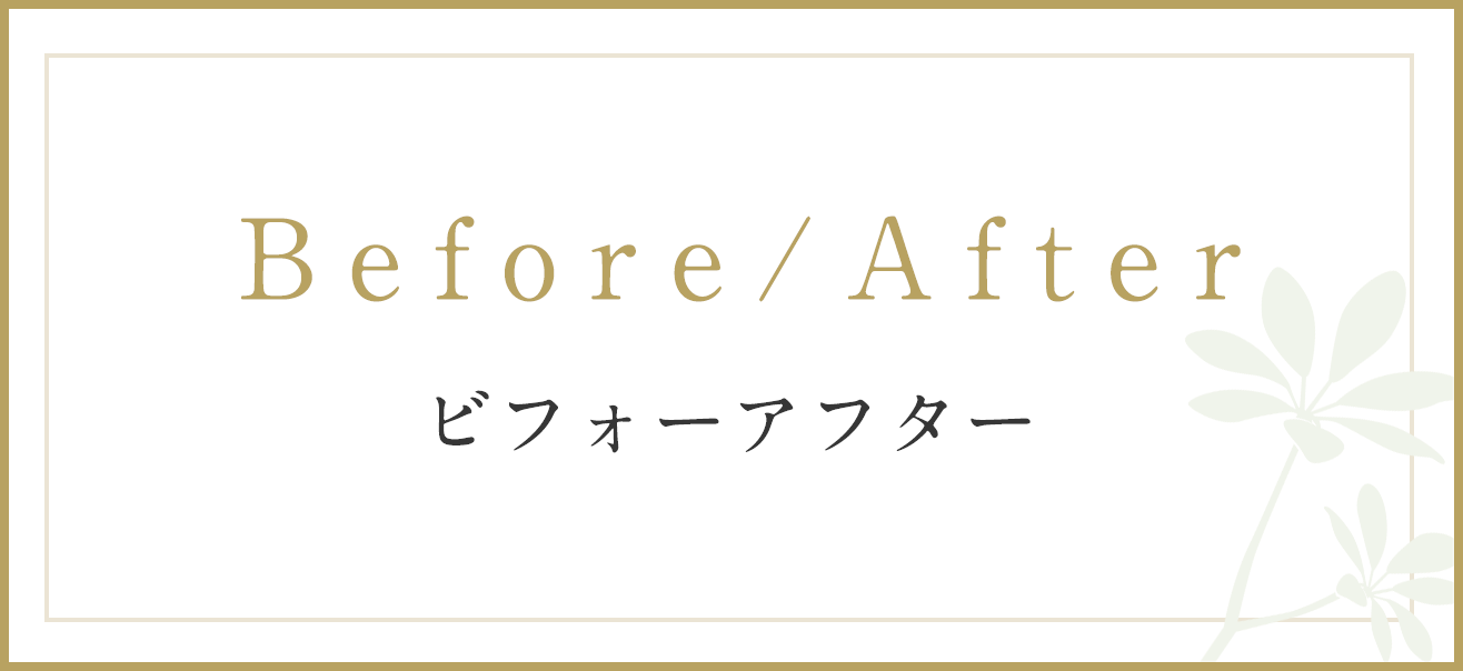 Before/After ビフォーアフター
